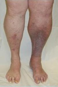 varicose vein risk factor varicose vein symptoms
